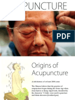 Acupuncture (presentation) by Zheng Jiayin