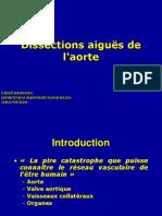 Dissections aiguës de l'aorte MEDECINE D'URGENCE 07-08.ppt