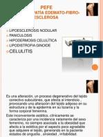 Celulitis y Homotoxicologia