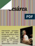 Cesarea2