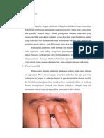 PENEGAKAN DIAGNOSA glaukoma