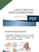 Caso Clinico Artritis Reumatoide Presentacion