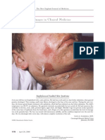 Staphylococcal Scalded Skin Syndrome - Images in Clinical Medicine NEJM