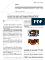 Resin-Bonded Bridge Conservative Treatment Option for Single Tooth