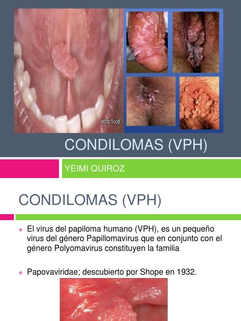 papilom al condilomului cervical)