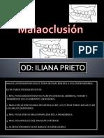 Clase de Malaoclusion.