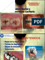 Caries Dental- Biomateriales