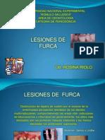 lesionesdefurcapresentacionrosina-120404123359-phpapp01