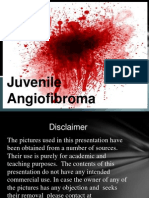 Throat Pharynx Juvenile Angiofibroma ENT Lectures