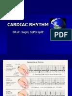 Cardiac Aritmia