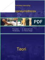 Hemopneumothorax