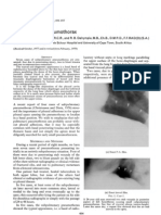 Subpulmonar Pneumothorax