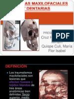 FRACTURAS Maxilofaciales y Dentarias