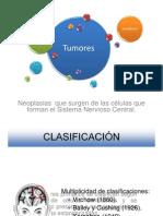 Tumores Benignos y Malignos del SNC (completo).pptx