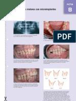 Intrusión de molares con microimplantes