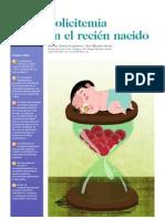 Policitemia Neonatal