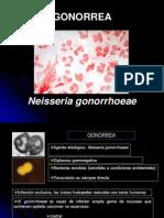 Gonorrea.y Sifilis.