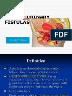 Genitourinary Fistulas