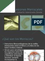 Lesiones Meniscales OSCAR