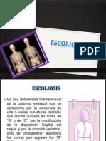 escoliosis exposicion.ppt