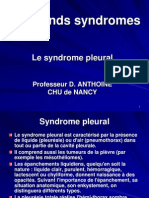 syndrome pleural