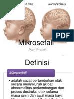 Mikrosefali