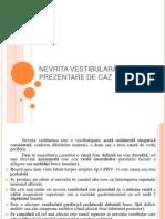 Nevrita Vestibulara - Prezentare de Caz