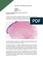 hupa_mastocitosis_sistemica