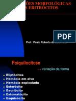 Aula 03_Alteracoes Morfologicas Dos Eritocitos