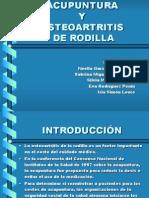 Acup - Osteoartritis de Rodilla