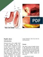 Peptic Ulcer Print