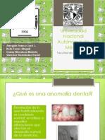 Anomalías Dentarias