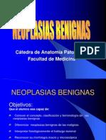 neoplasiasbenignas-101007221109-phpapp02