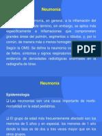 Seminario Neumonía Carlos Melendez
