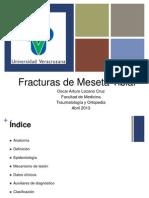 Fracturas de Meseta
