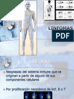 linfoma de h.pptx