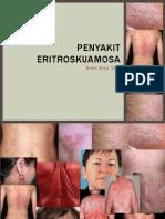 Penyakit eritroskuamosa