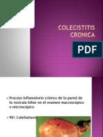 Colecistitis Cronica enfermedades de la vesicula
