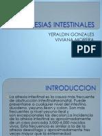 Atresias Intestinales Lorena