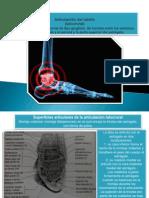 Articulación del tobillo anatomia