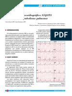 ECG en TEP