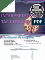 Interpret Ac i on de Tac Cerebro