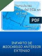 Alteraciones ECG en El IAM 2