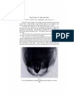 fractur zygoma