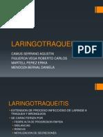 LARINGOTRAQUEITISCROUP.pptx