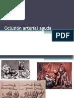 92334868 Oclusion Arterial Aguda