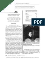 Feocromocitoma Extra Adrenal