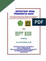 Manifestasi Oral Penderita AIDS