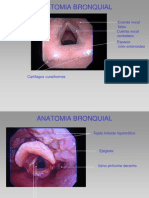 Anatomia Endobronquial