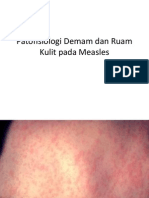 Patofisiologi Demam dan Ruam Kulit pada Measles.pptx